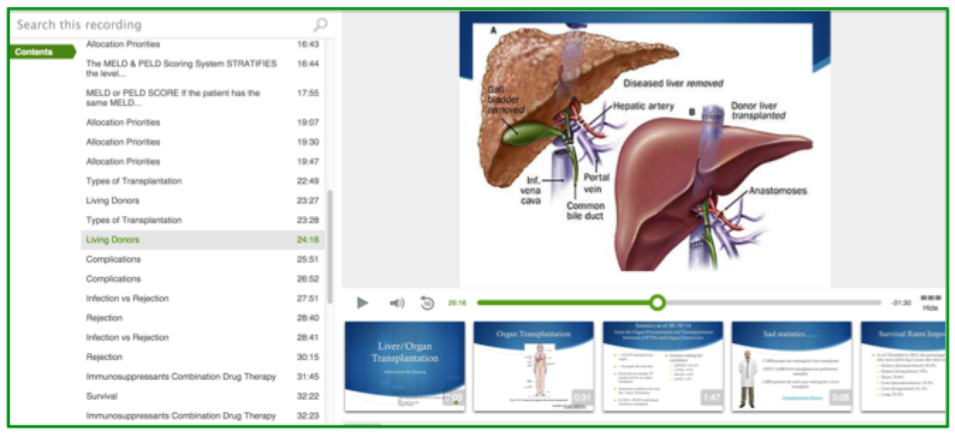 Liver Transplantation Lecture - Panopto ELearning Video Platform